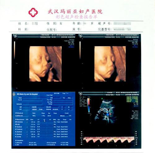 怀孕六个月 可以做四维彩超吗图片